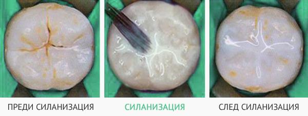 силанизация на детски зъб